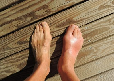 If Your Feet Could Talk: Interview with Dr. Andrew Yang, Podiatrist
